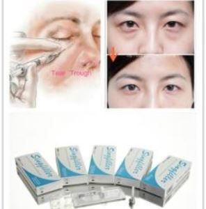 Buy dermal fillers wholesale